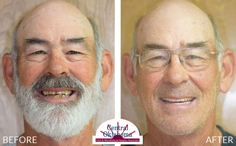 All-on-4 before and after | Oral Surgery Oklahoma City | Dr. Richard Miller | Central Oklahoma Oral & Maxillofacial Surgery Associates