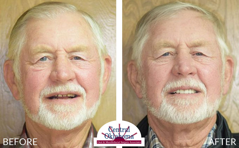 All-on-4 before and after | Oral Surgery OKC | Dr. Richard Miller | Central Oklahoma Oral & Maxillofacial Surgery Associates