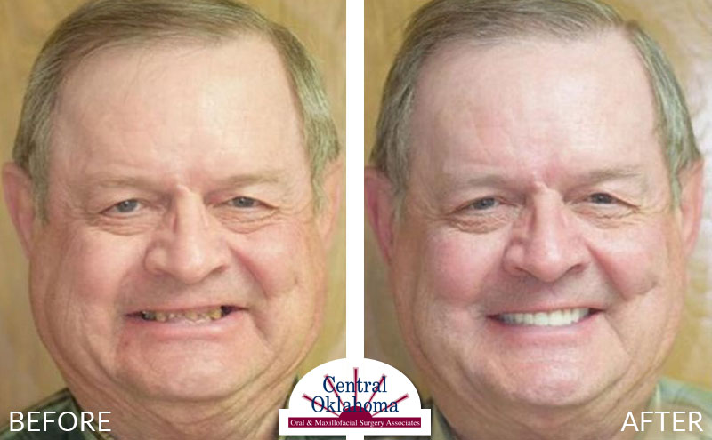 dental implants before and after | Oral Surgery Tulsa | Dr. Richard Miller | Central Oklahoma Oral & Maxillofacial Surgery Associates